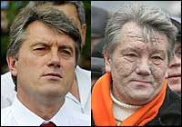 Viktor Yushchenko as he appeared in July 2004 (left) and as he appeared in November 2004 (right) after dioxin poisoning